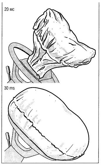 Динамическое наполнение подушки безопасности водителя